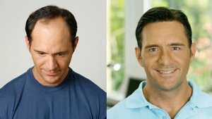 """This is how the argument would go: """"But honey, little girls don't get male pattern baldness."""" """"That's NOT FAIR!!!"""""""
