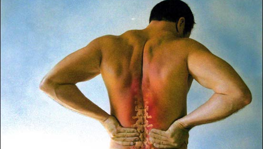 Actual picture of my back. Note how my spine is trying to escape my body.